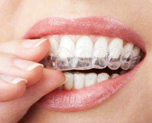 Tipos de retenedores en ortodoncia