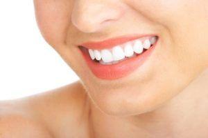 Precio de Retenedores Dentales