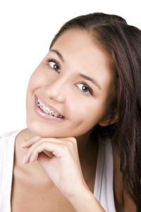 Retenedores dentales precio