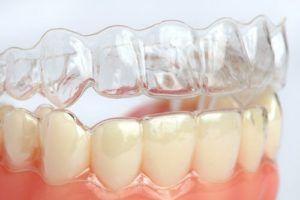 Ortodoncia retenedores